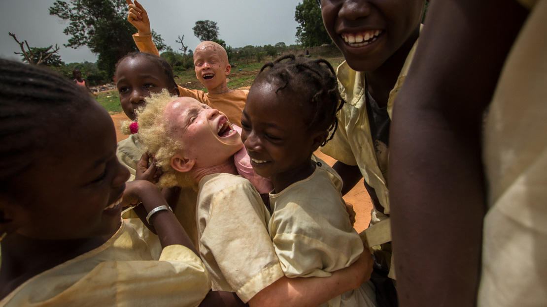 Aicha is playing with her friends in the playground of her school. Aicha is albino, she's 10 years old and she lives in Bissau.