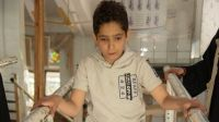 Yasser, 12, during a rehabilitation session at the Sana'a centre; }}