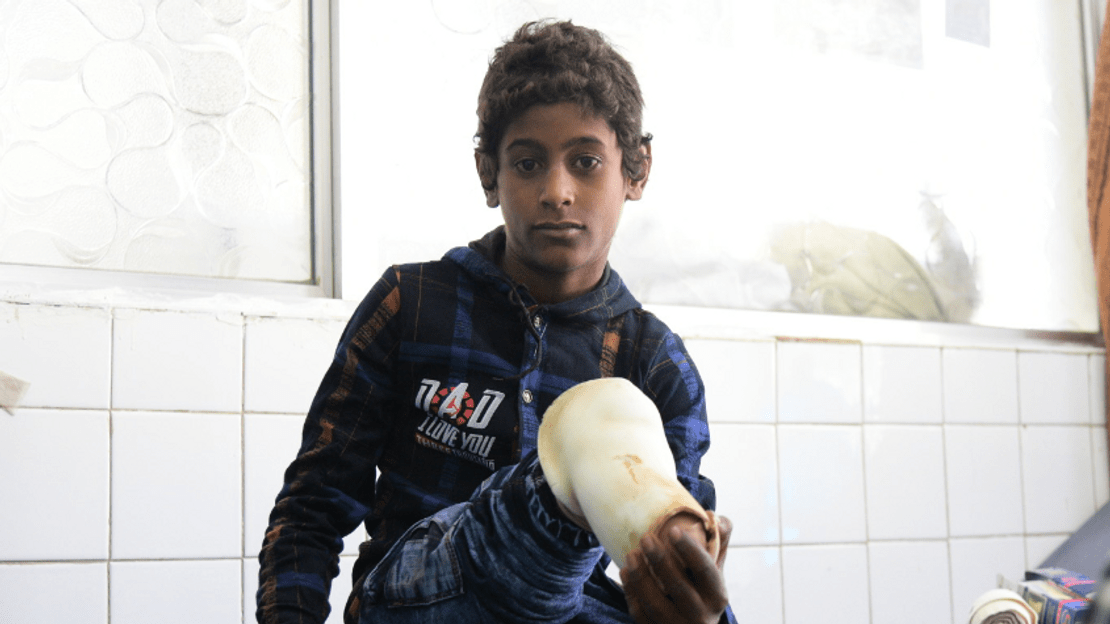 Abdullah is 12 years old. Severely injured in an aerial bombing in December 2019 while playing outside with friends, he had to be amputated.