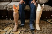 Hussein was amputated following a bombardment. He wears a prosthesis. He testifies on his difficulties as a disabled person to find a job ; }}