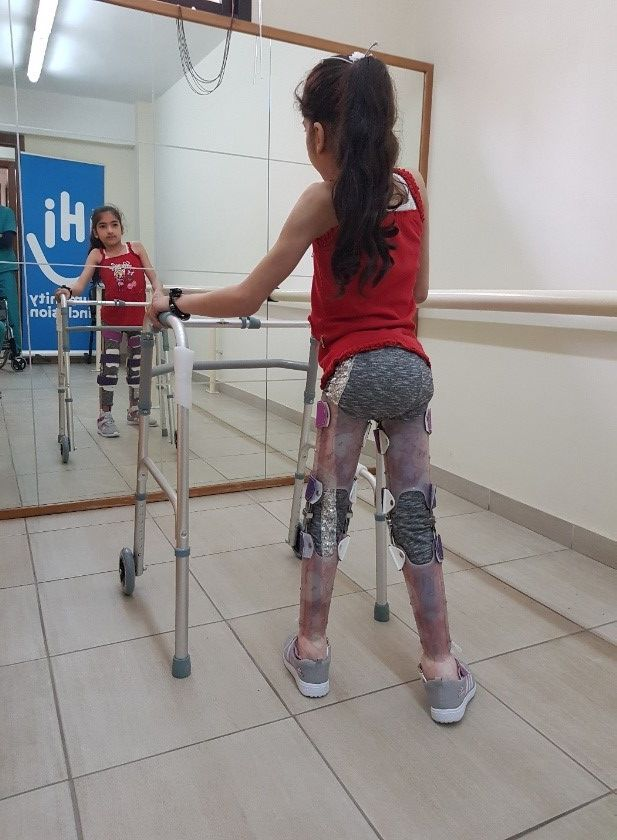 Shahid learns to walk with her assistive devices to become independent and confident